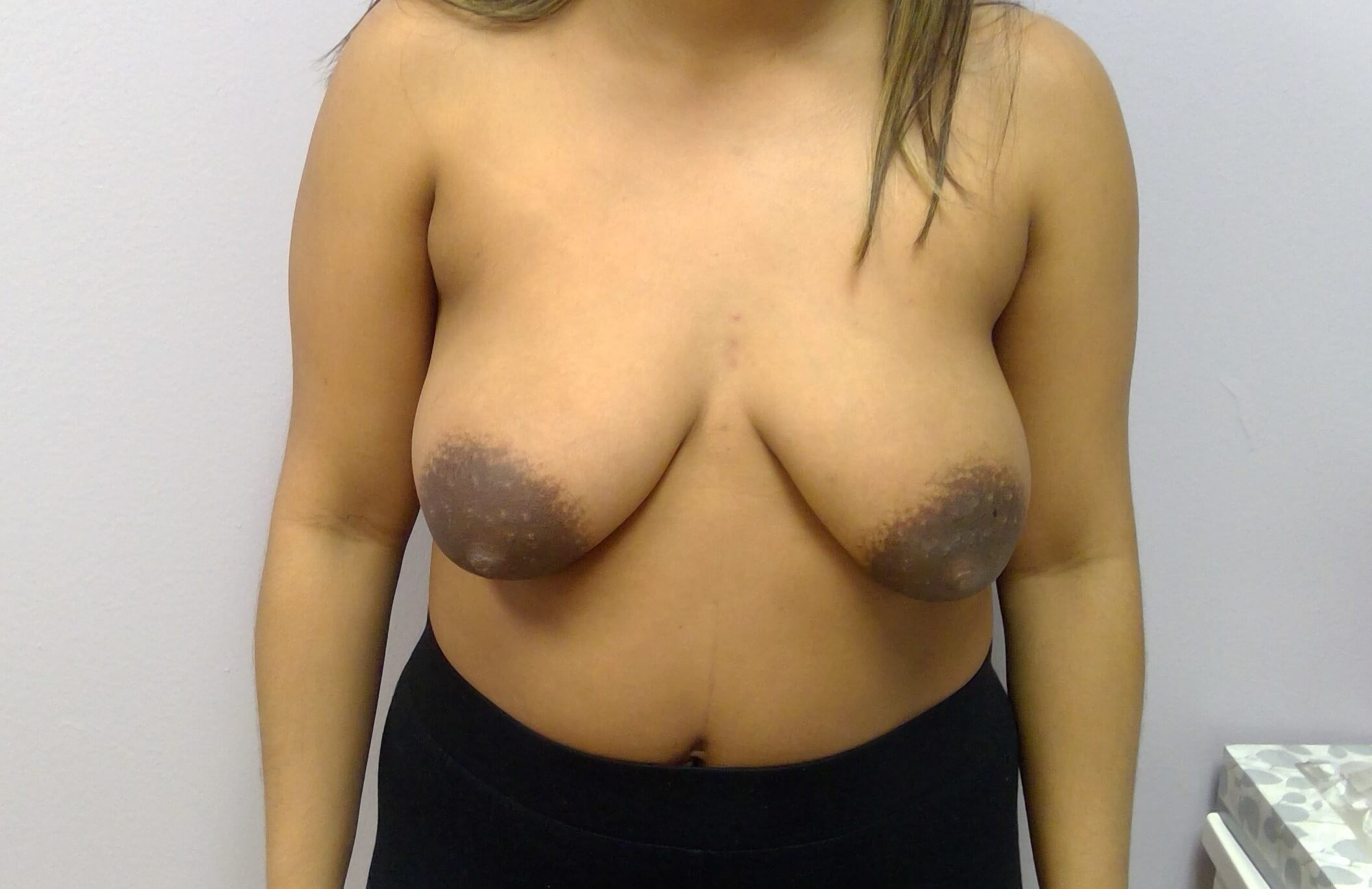 Silicone Breast Implants Before