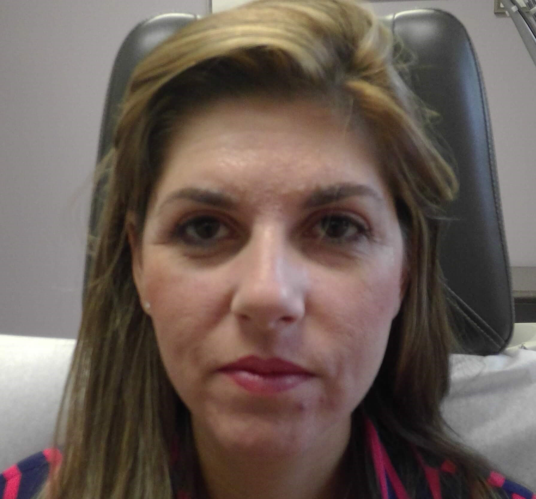 HALO Laser Resurfacing Before