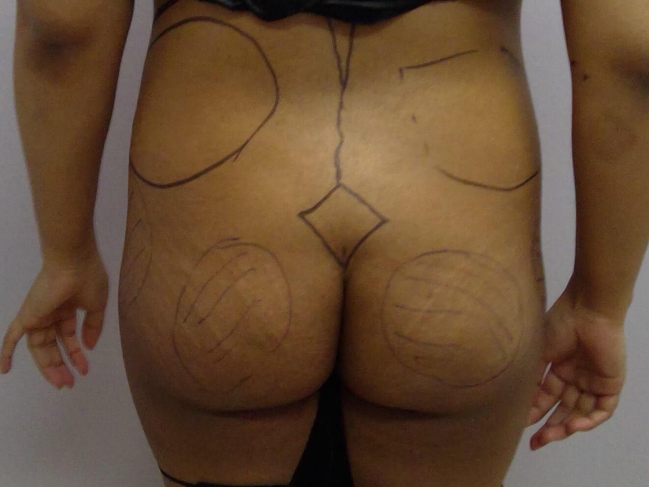 Liposuction & Fat Transfer Before