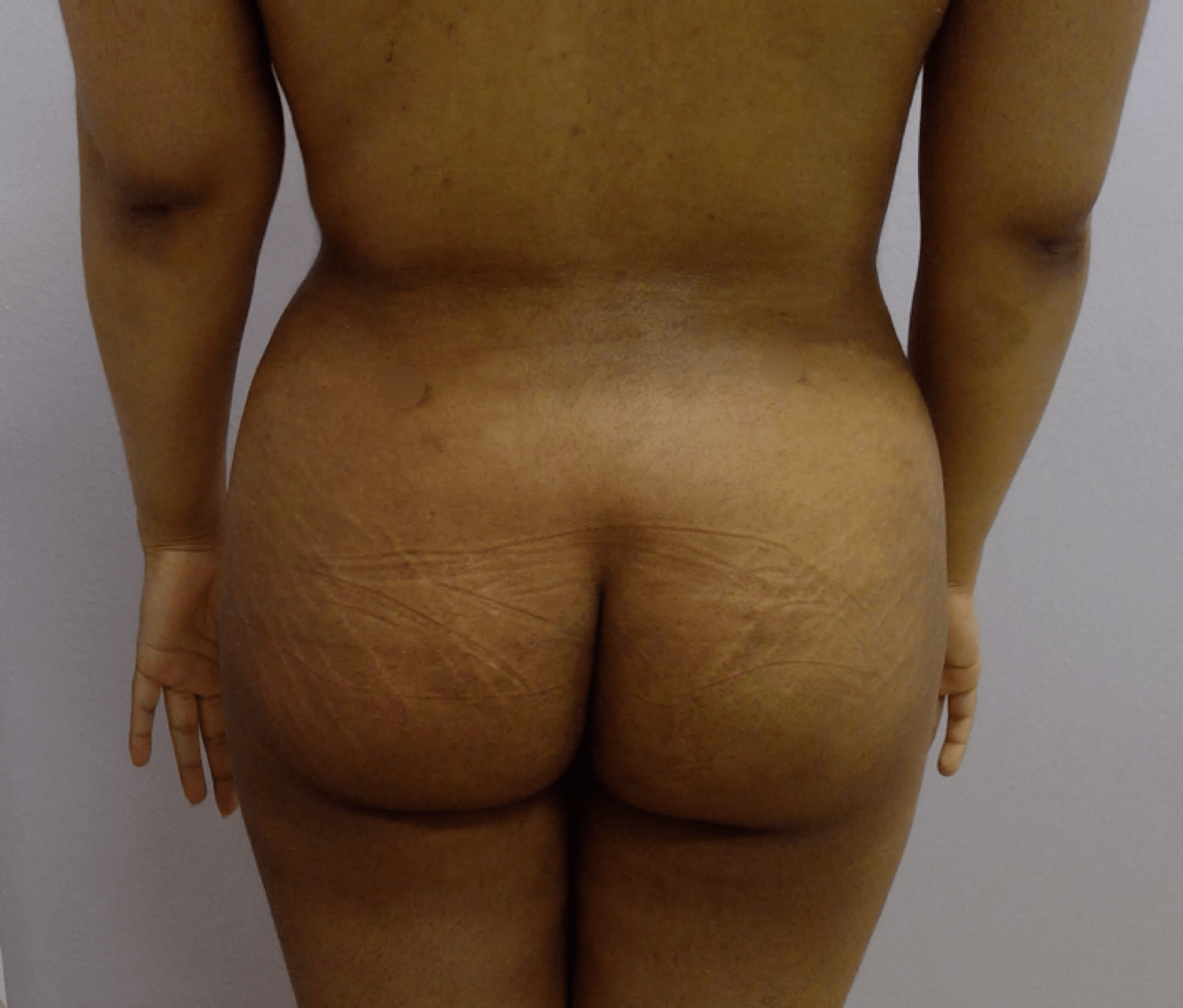 Liposuction & Fat Transfer After