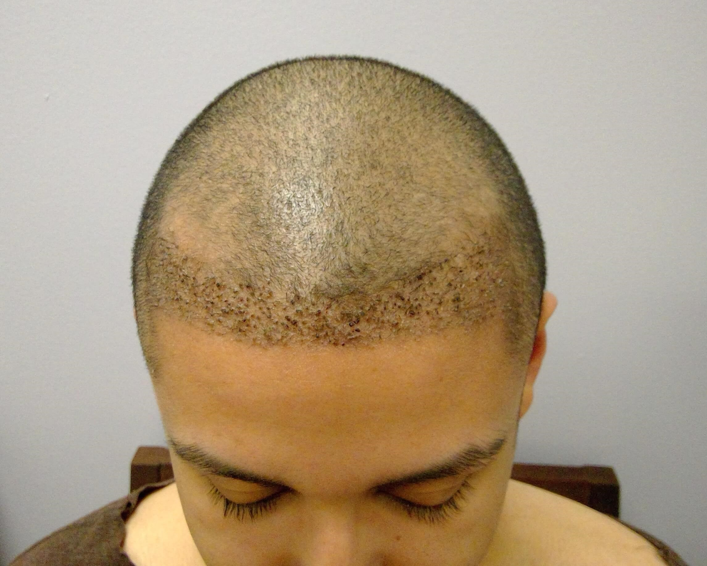 No Incision Hair Transplant After