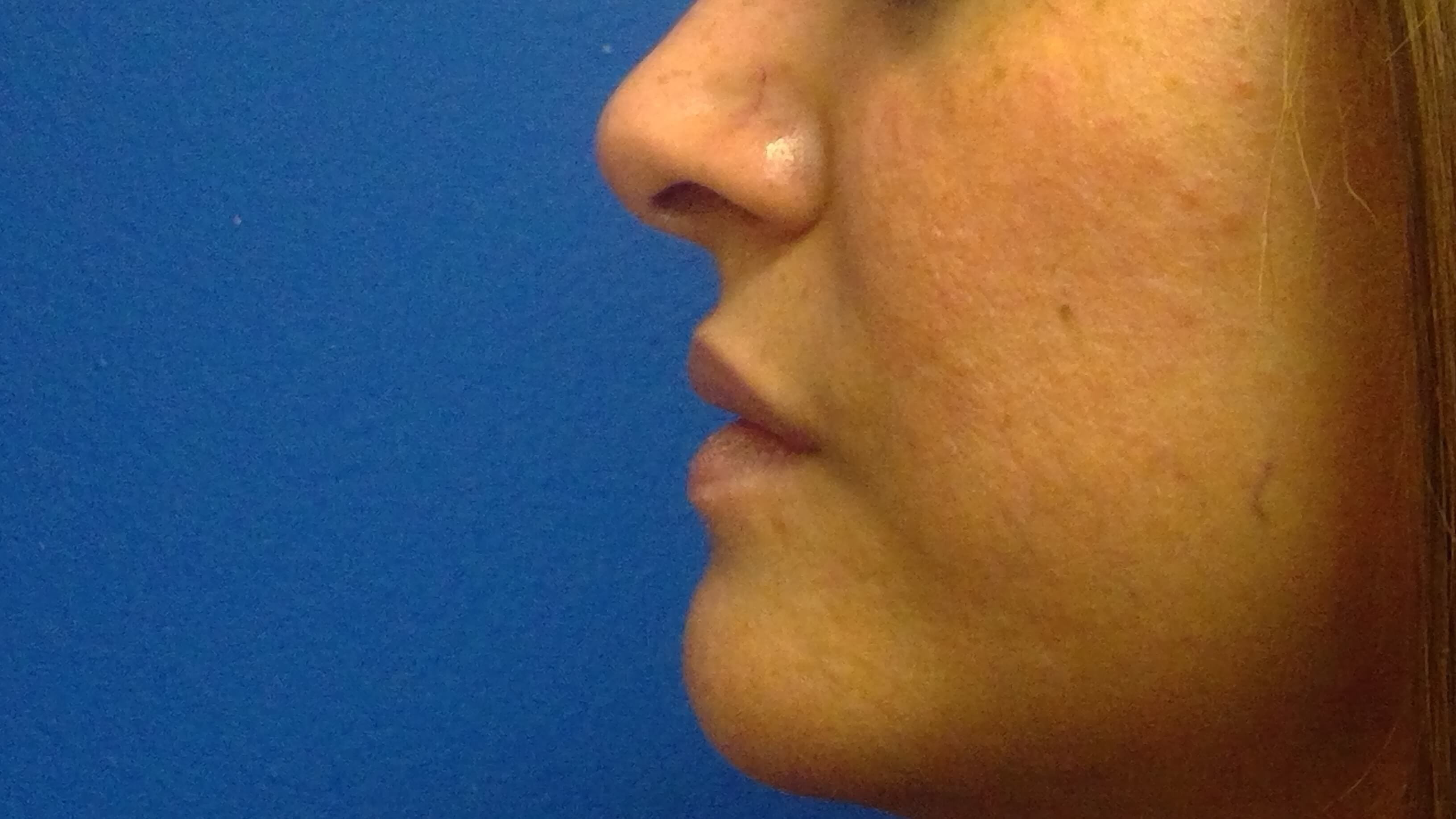 Juvederm Before & After Before