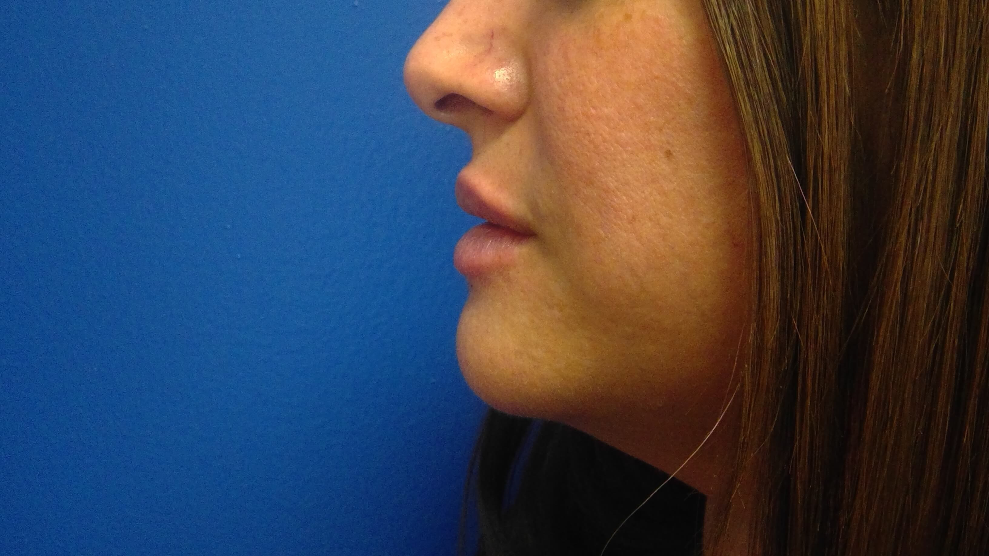 Juvederm Before & After After