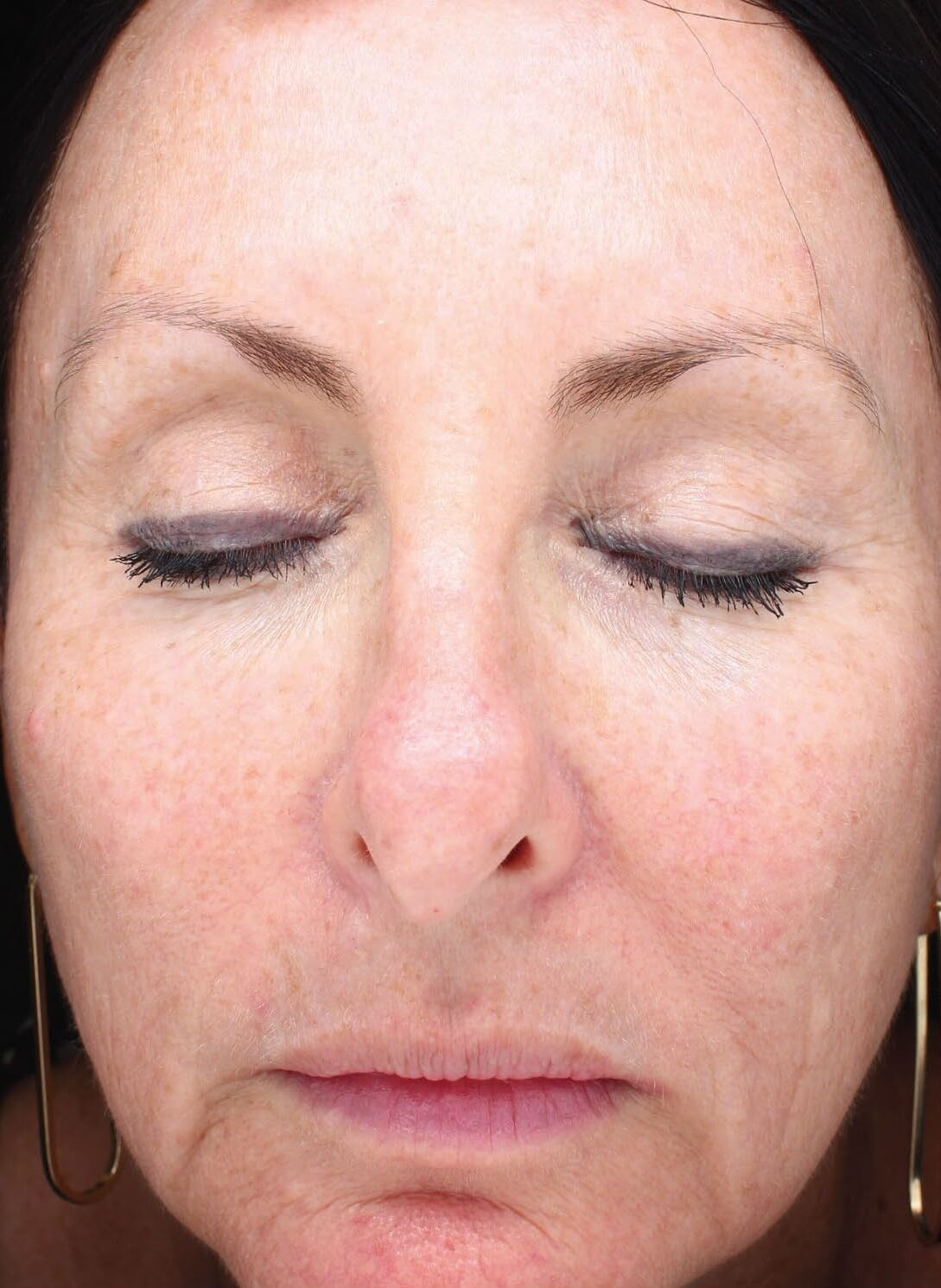 HALO Laser Resurfacing After