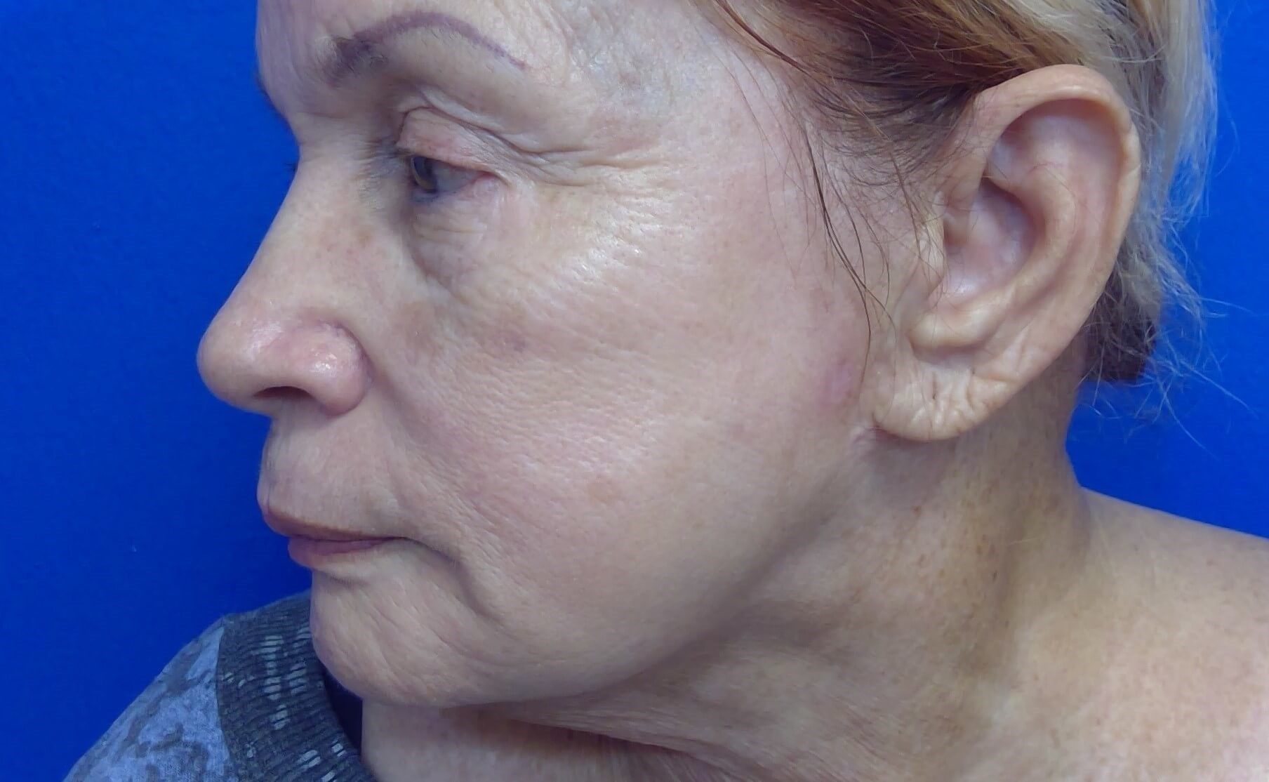 PDO Non-Surgical Facelift Before