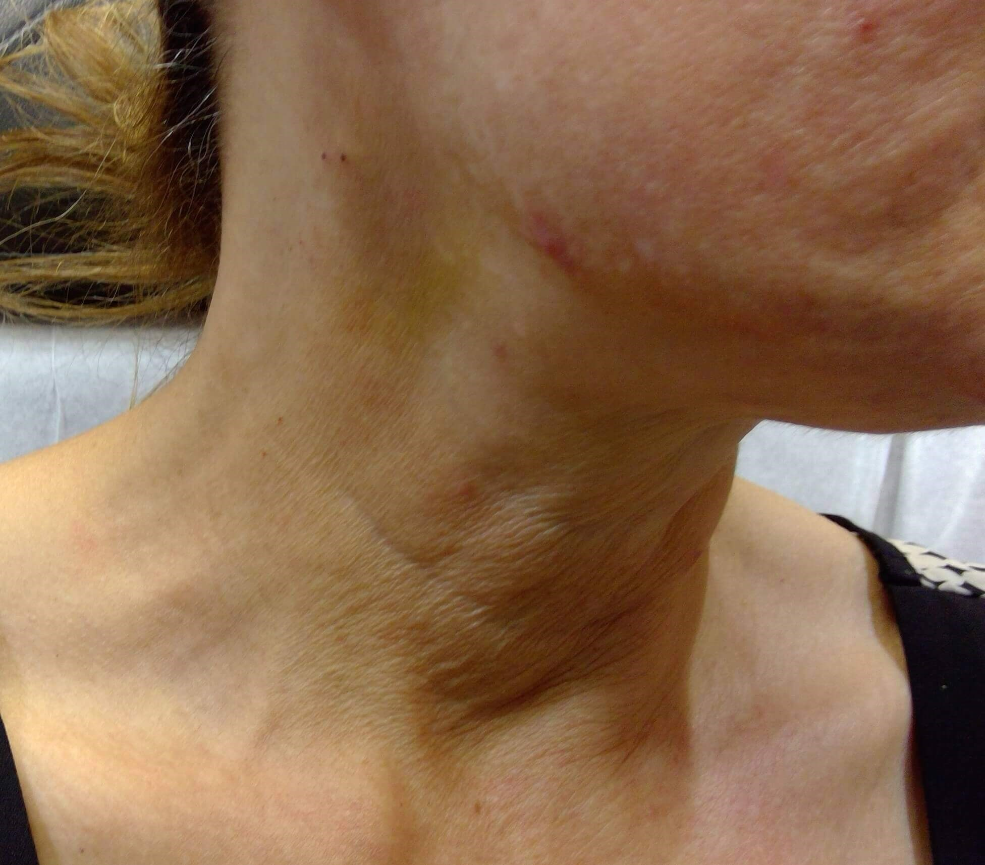 PDO Threadlift Neck Before