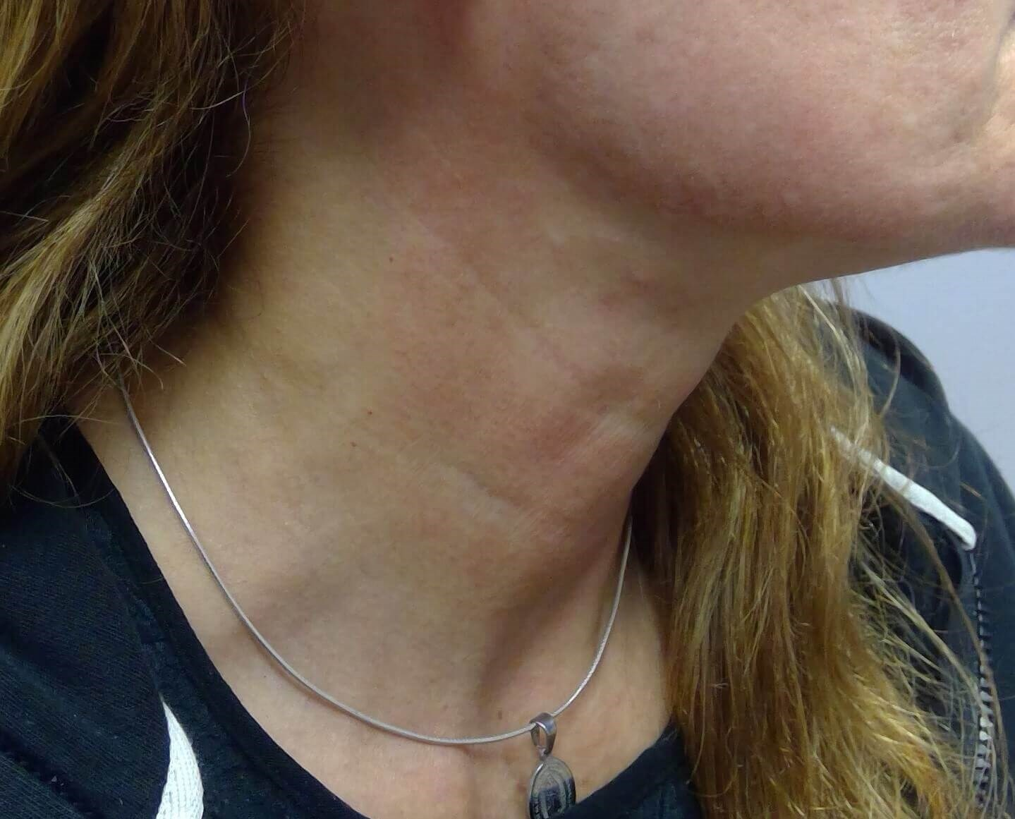 PDO Threadlift Neck After