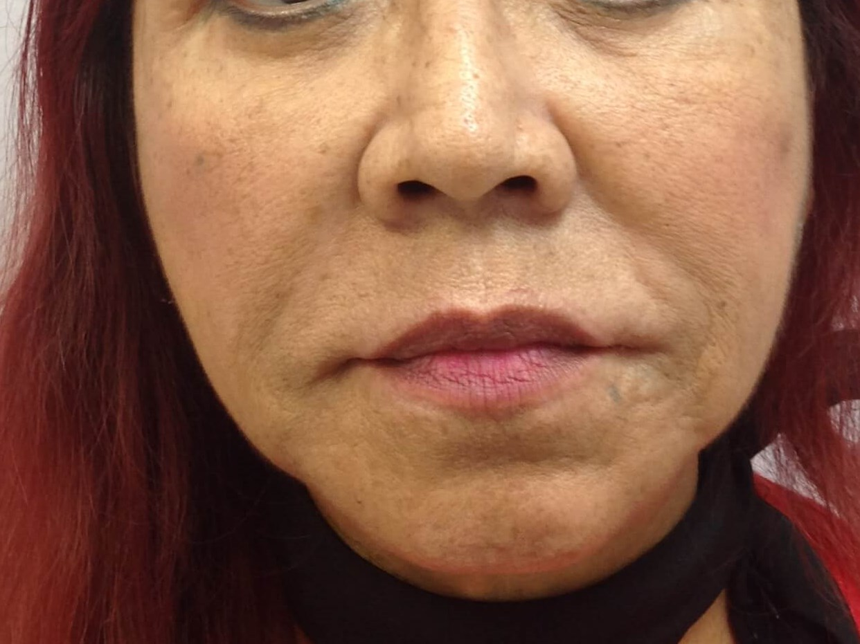 Restylane Filler Before