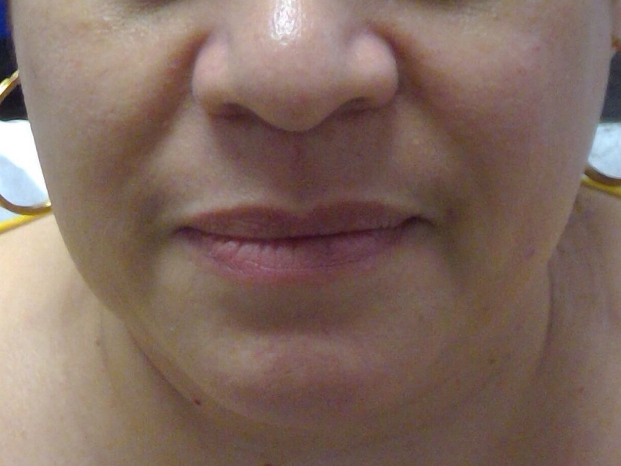 Filler for Nasal Labial Folds Before